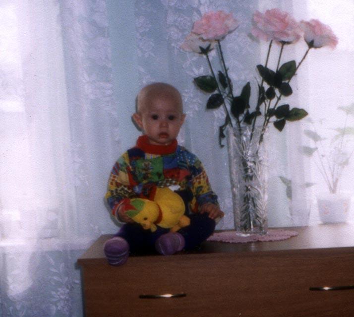 Рабдомиосаркома у детей фото